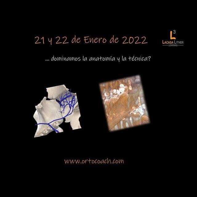 Formación: Curso Invisalign y minitornillos 21 y 22 de enero de 2022
